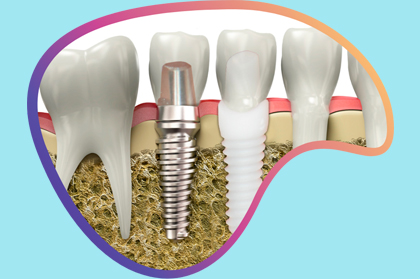 6 reasons why having metal-free zirconia dental implants